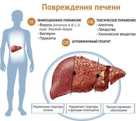 Заболевания печени - причины, симптомы