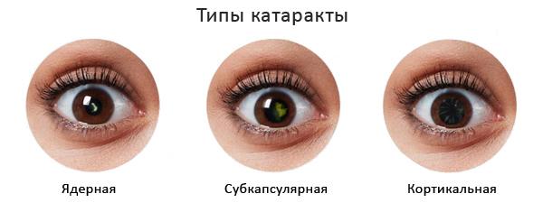 Лечение катаракты в Москве