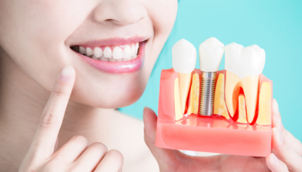 Дешевая имплантация зубов