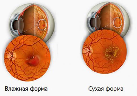 Проблемы со зрением. Макулодистрофия
