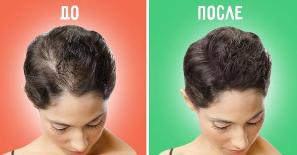 Средства для роста волос: принцип действия
