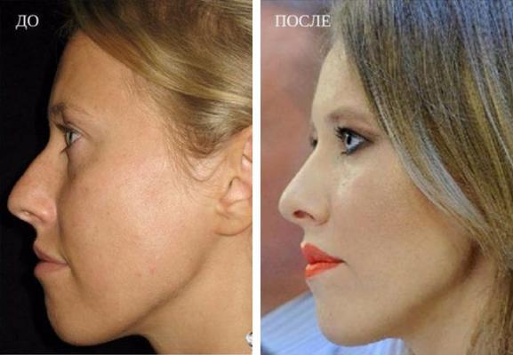 Коррекция кончика носа: как проводится операция