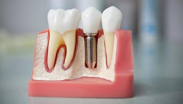 Имплантация зубов противопоказания и возможные осложнения